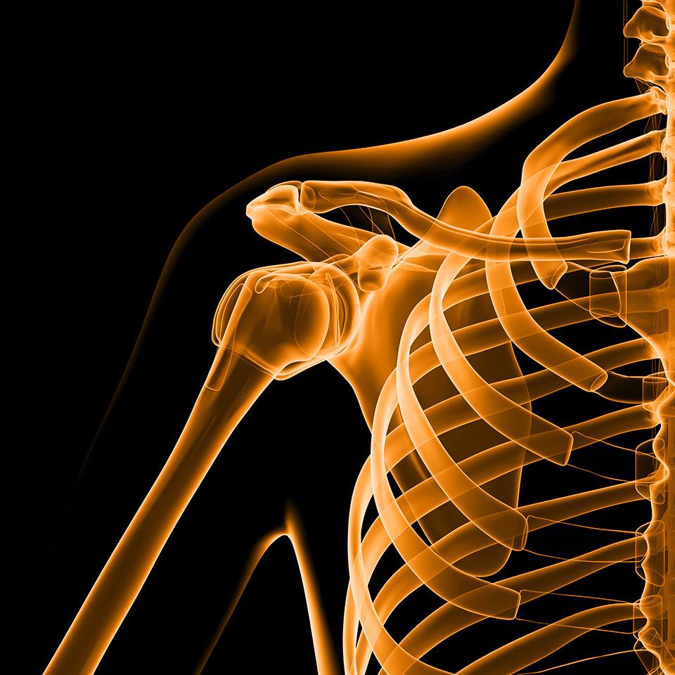 X-ray Shoulder